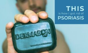 Dermabón : The Answer To Psoriasis Disease Found By José María Licona